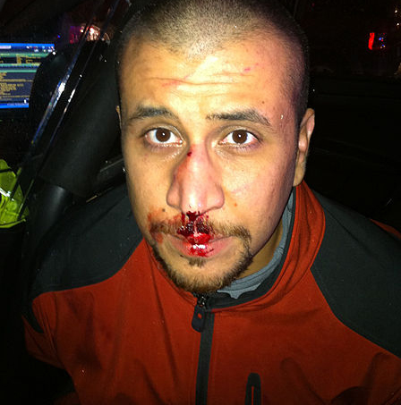 zimmerman broken nose